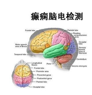 北京癫痫病治疗最好医院
